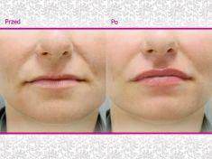 Powiększanie ust kwasem hialuronowym - Zdjęcie przed - Klinika Wiatroszak - ESTmedica
