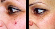 Odstránenie znamienok, kožných výrastkov - Fotka pred