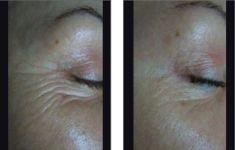 Radiofrequency Rejuvenation (Aluma, accent, TriPollar, Spa RF device, Re-Age) - Photo before - Klinika YES VISAGE - klinika estetické medicíny a plastické chirurgie
