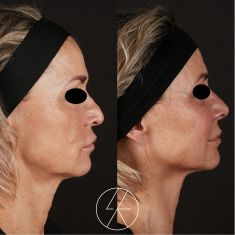 Hyaluronic acid-based wrinkle fillers - Photo before - MUDr. Lucie Kalinová PhD.