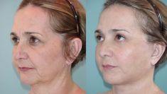 Lifting facial - Foto Antes de - Henríquez Cirurgía Plástica