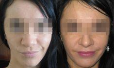 Profiloplastyka twarzy (implantaty) - Zdjęcie przed - Dr Szczyt Klinika Chirurgii Plastycznej