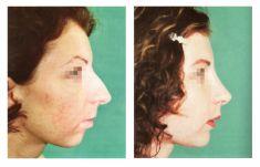 Operace brady - Profiloplastika - fotka před - Doc. MUDr. Jan Válka