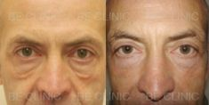 Eyelid surgery (Blepharoplasty) - Photo before - Be Clinic
