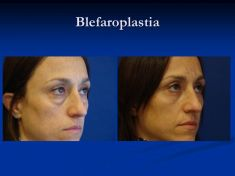 Cirugía de párpados (Blefaroplastia) - Foto Antes de - Dr. Fabian Peréz Rivera