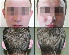Korekcja uszu (Otoplastyka) - Zdjęcie przed - dr n. med. Janusz Jastrzębski