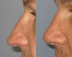 Plastika nosu (Rhinoplastika) - fotka před - MUDr. Jiří Borský Ph.D.