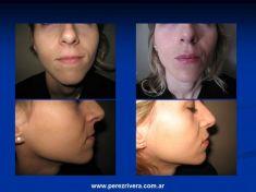 Queiloplastia (Aumento de labios) - Foto Antes de - Dr. Fabian Peréz Rivera