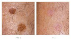 Tattoo removal - Photo before