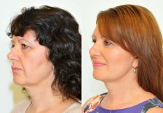 Facelift - Photo before