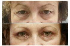 Operace horních víček - Žena, 57 let, plastická operace horních víček