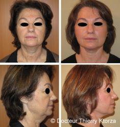 Lifting Facial Silhouette Soft - Cliché avant - Dr Thierry KTORZA