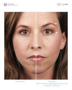 Traitement galvanique (Nu Skin Galvanic spa system ™ )  – revitalisation de la peau - Cliché avant - Dr Franck Benhamou