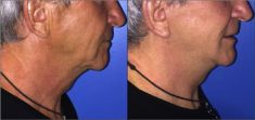 Dr Alexandre Mertens - Photo before - Dr Alexandre Mertens