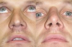 """Rinoplastica - I due """"duomi"""" ('domes') delle cartilagini alari sono stati simmetrizzati ed armonizzati con l'impiego di innesti provenienti dalla porzione più alta delle stesse cartilagini."""