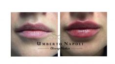 Aumento labbra - aumento delle labbra mediante filler Allergan Volbella