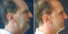 Liposukcija  - Fotografija prije - Poliklinika za estetsku kirurgiju Dr. Tončić