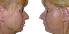 Facelift, SMAS facelifting - Fotka pred - GÉVÉ Klinika