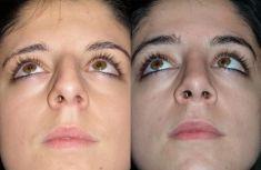 """Rinoplastica - La punta è stata appena """"triangolarizzata"""" mediante suture ed innesti sottili a provenienza dallo stesso eccesso rimosso dalla porzione alta delle cartilagini alari. La cicatrice di accesso non è visibile."""