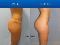 Aumento y Modelado de Glúteos - Foto Antes de - Dr. Alexander Amir Aslani