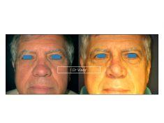 Rhinoplastie secondaire - Cliché avant - Dr Romain Viard