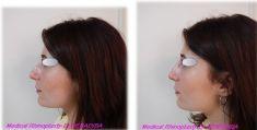 Non-Surgical Nose Job - Photo before - Dr Laurent Benadiba M.D