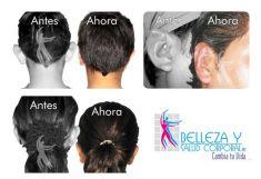 Otoplastia - Foto Antes de - Belleza y Salud Corporal