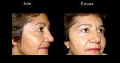 Rejuvenecimiento facial sin cirugia (Radiofrecuencia estética) - Foto Antes de - Dr. Felipe Amaya