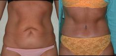 Abdominoplasty (Tummy Tucks) - Photo before - Be Clinic