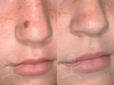 Laser skin tag removal - Photo before - Mediestetik, skupina klinik