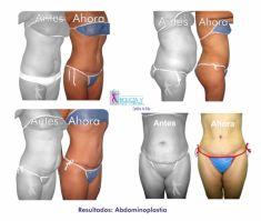 Abdominoplastia - Foto Antes de - Belleza y Salud Corporal