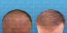 Transplantácia vlasov - Fotka pred - GÉVÉ Klinika