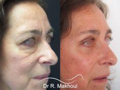Dr Rani Makhoul - Comblement du creux des cernes, redrapage cutané, rajeunissement spectaculaire du regard.