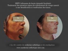 HIFU thérapie (lifting médical) - en une seule séance le relâchement de l