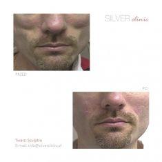 Sculptra - Zdjęcie przed - dr Adam Srebrzyński - Silver Clinic