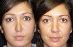 """Rinoplastica - Le linee estetiche del dorso sono migliorate. La deformità """"a V invertita"""" è stata corretta con """"spreader grafts"""" , che hanno anche migliorato la funzione delle valvole nasali interne"""