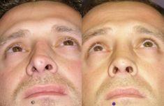 Dott. Enrico Robotti - La correzione della punta è soddisfacente. La cicatrice alla columella non è visibile.