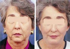 Lifting facial - Foto Antes de - Dr. Felipe Martinez Restrepo Felipe Martinez
