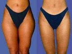 Liposuccion - Extérieur et intérieur des cuisses Dessus des genoux