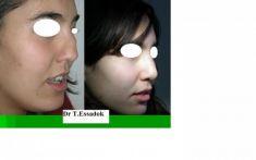 Dr Tayeb Essadok - Rhinoplastie de reconstruction pour nez traumatique en réutilisant le cartilage septal
