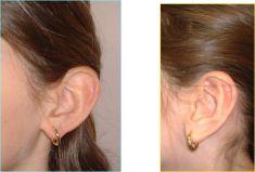 Ear surgery (Otoplasty) - Photo before - Dr Laurent Benadiba M.D