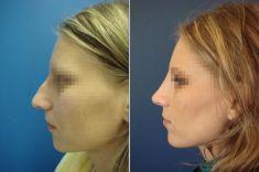 Plastika nosu (Rhinoplastika) - fotka před - Doc. MUDr. Jan Válka