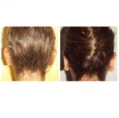Otoplastie (Chirurgie esthétique des oreilles) - Cliché avant - Dr Donatella Negro