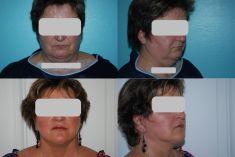 Lifting du visage - Cliché avant - Dr Jean-Louis Séchaud