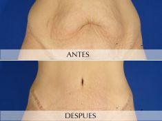 Abdominoplastia - Foto Antes de - Clínica Planas