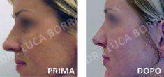 Rinoplastica - Foto del prima - Dr. med. spec. FMH Luca Borra