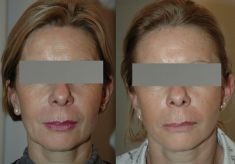Thread lift - Photo before - Dr Jacques Buis