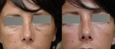Dermal fillers - Photo before - Dr Jacques Buis