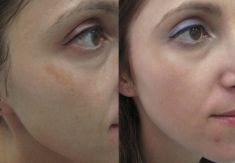 Laserowe usuwanie tatuażu i pigmentów - Zdjęcie przed