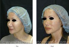 Lifting viso - Foto del prima - Dott. Sebastian Torres Farr